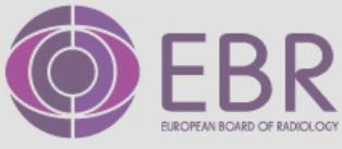 Logotipo EBR
