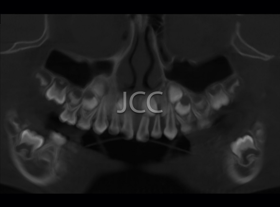 jcc_dental_scan_maxilar_mandibular_2.jpg