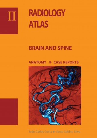 Radiology ATLAS - Brain and spine
