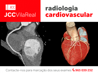 You can now do your Cardiac CT in Vila Real